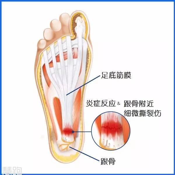 足底筋膜炎的症状和相关护理治疗 - 健康 - 东方